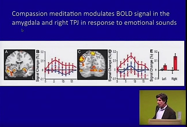Compassion also modulates the bold signal in the amygdala and right TPJ.
