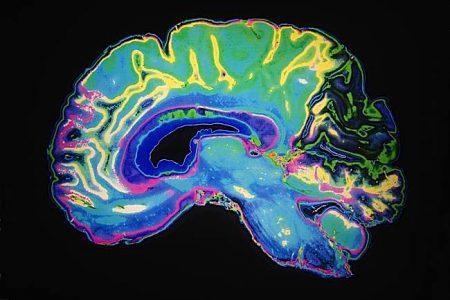 Buddha Weekly MRI Colored Buddhism