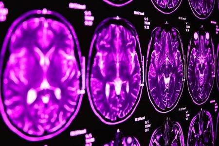 Buddha Weekly MRI scans Buddhism