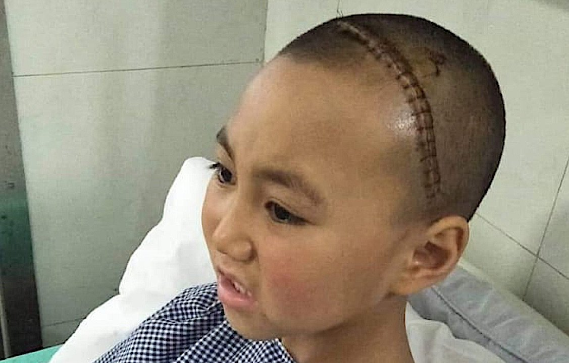 Buddha Weekly Young nun Stanzin underwent brain surgery thanks to the generosity of students at a Toronto teaching event with Zasep Rinpoche Buddhism